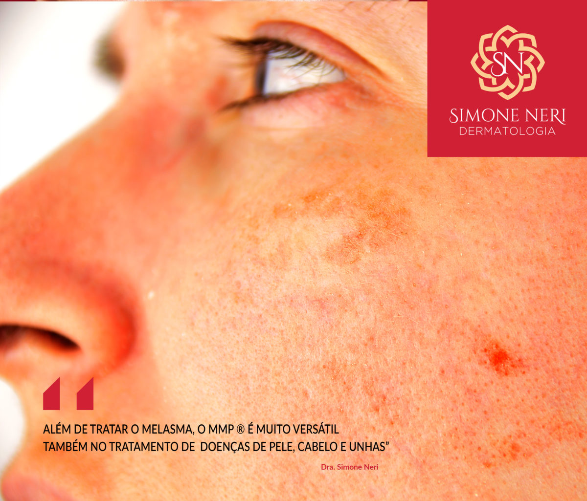 Novidades no tratamento do Melasma